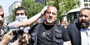 Taksim Parkında Kan Döküldü, Gazeteci Ahmet Şık Yaralandı.