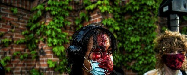 ABD'deki protestolarda 60'tan fazla gazeteci şiddete maruz kaldı