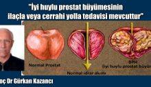 İyi huylu prostat büyümesinin ilaçla veya cerrahi yolla tedavisi mevcuttur-2