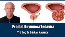 İyi Huylu Prostat Büyümesi Tedavisi