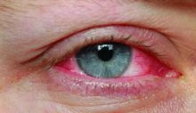 Korona Virüste Göz Problemine Dikkat