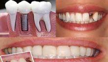 Diş İmplantı Sonrası Nelere Dikkat Edilmeli