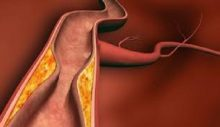 Damar Sertliği En Ölümcül Hastalıklar Arasında